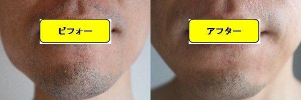ヒゲ脱毛施術前の顔の正面側の写真とゴリラクリニックでヒゲ脱毛した第8回目照射1ヵ月後の顔の正面側の写真の比較画像