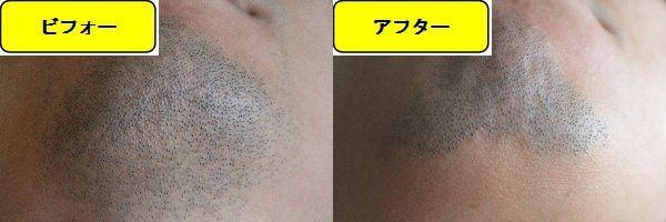 ヒゲ脱毛施術前の顎下の写真とゴリラクリニックでヒゲ脱毛した第8回目照射1ヵ月後の顎下の写真の比較画像