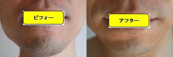 ヒゲ脱毛施術前の顔の正面側の写真とゴリラクリニックでヒゲ脱毛した第9回目照射1日後の顔の正面側の写真の比較画像