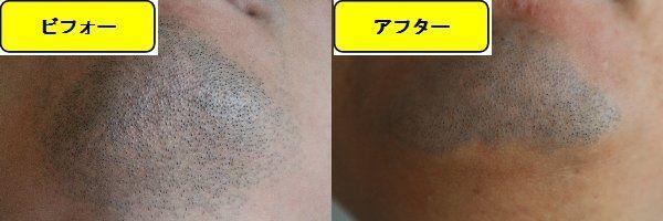 ヒゲ脱毛施術前の顎下の写真とゴリラクリニックでヒゲ脱毛した第9回目照射1日後の顎下の写真の比較画像