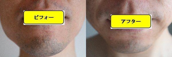 ヒゲ脱毛施術前の顔の正面側の写真とゴリラクリニックでヒゲ脱毛した第9回目照射1週間後の顔の正面側の写真の比較画像