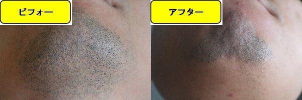 ヒゲ脱毛施術前の顎下の写真とゴリラクリニックでヒゲ脱毛した第9回目照射1週間後の顎下の写真の比較画像
