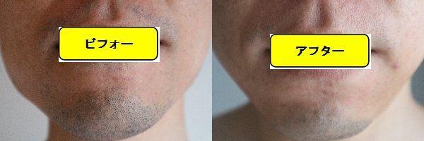 ヒゲ脱毛施術前の顔の正面側の写真とゴリラクリニックでヒゲ脱毛した第9回目照射1ヵ月後の顔の正面側の写真の比較画像