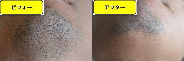 ヒゲ脱毛施術前の顎下の写真とゴリラクリニックでヒゲ脱毛した第9回目照射1ヵ月後の顎下の写真の比較画像