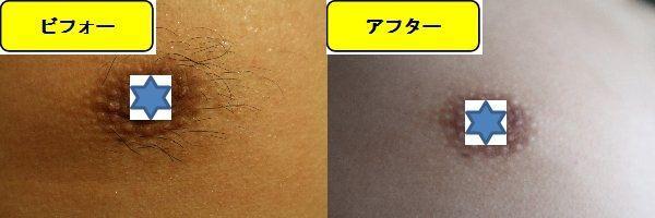 メンズ全身脱毛のクリニックである湘南美容クリニックで乳輪周囲と胸を脱毛した効果を示す画像 施術前と第6回目照射後の1週間後の比較画像