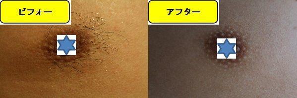 メンズ全身脱毛のクリニックである湘南美容クリニックで乳輪周囲と胸を脱毛した効果を示す画像 施術前と第6回目照射後の1ヶ月後の比較画像