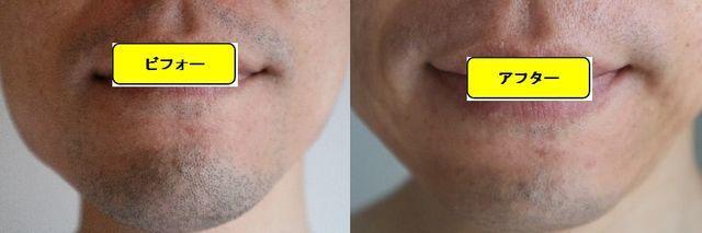 ヒゲ脱毛施術前の顔の正面側の写真とゴリラクリニックでヒゲ脱毛した第10回目照射1日後の顔の正面側の写真の比較画像