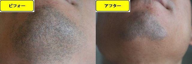 ヒゲ脱毛施術前の顎下の写真とゴリラクリニックでヒゲ脱毛した第10回目照射1日後の顎下の写真の比較画像