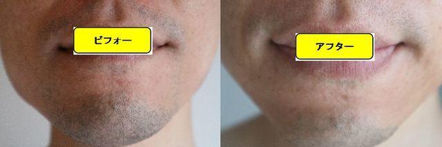 ヒゲ脱毛施術前の顔の正面側の写真とゴリラクリニックでヒゲ脱毛した第10回目照射1週間後の顔の正面側の写真の比較画像