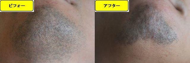 ヒゲ脱毛施術前の顎下の写真とゴリラクリニックでヒゲ脱毛した第10回目照射1週間後の顎下の写真の比較画像