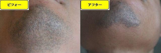 ヒゲ脱毛施術前の顔の正面側の写真とゴリラクリニックでヒゲ脱毛した第10回目照射1ヵ月後の顔の正面側の写真の比較画像