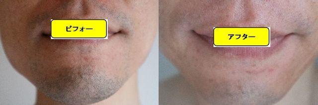 ヒゲ脱毛施術前の顔の正面側の写真とゴリラクリニックでヒゲ脱毛した第11回目照射1日後の顔の正面側の写真の比較画像