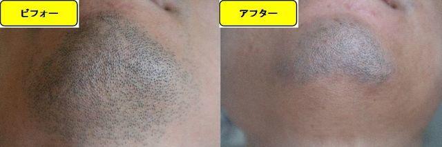 ヒゲ脱毛施術前の顎下の写真とゴリラクリニックでヒゲ脱毛した第11回目照射1日後の顎下の写真の比較画像