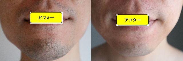 ヒゲ脱毛施術前の顔の正面側の写真とゴリラクリニックでヒゲ脱毛した第11回目照射1週間後の顔の正面側の写真の比較画像