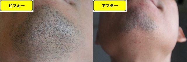 ヒゲ脱毛施術前の顎下の写真とゴリラクリニックでヒゲ脱毛した第11回目照射1週間後の顎下の写真の比較画像