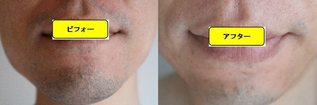 ヒゲ脱毛施術前の顔の正面側の写真とゴリラクリニックでヒゲ脱毛した第11回目照射1ヵ月後の顔の正面側の写真の比較画像