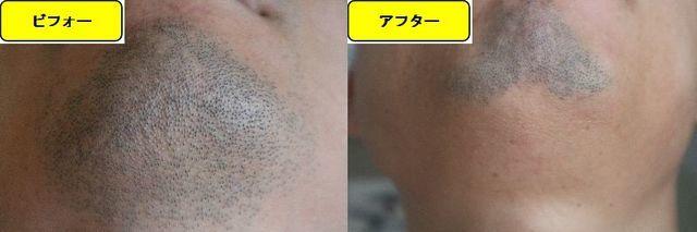 ヒゲ脱毛施術前の顎下の写真とゴリラクリニックでヒゲ脱毛した第11回目照射1ヵ月後の顎下の写真の比較画像