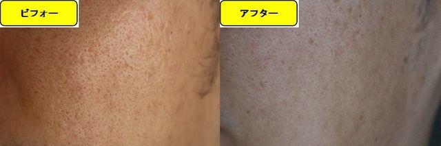 毛穴の開きとニキビ跡の治療であるケミカルピーリング治療前の顔の右側の写真と第5回目治療1日後の顔の右側の写真