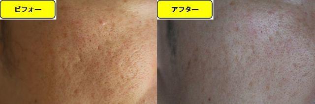 毛穴の開きとニキビ跡の治療であるケミカルピーリング治療前の顔の左側の写真と第5回目治療1日後の顔の左側の写真