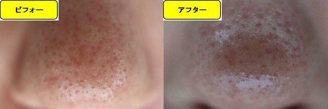毛穴の開きとニキビ跡の治療であるケミカルピーリング治療前の鼻の写真と第5回目治療1日後の鼻の写真