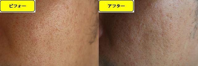 毛穴の開きとニキビ跡の治療であるケミカルピーリング治療前の顔の右側の写真と第5回目治療1週間後の顔の右側の写真