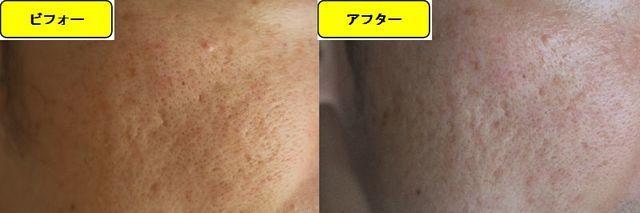 毛穴の開きとニキビ跡の治療であるケミカルピーリング治療前の顔の左側の写真と第5回目治療1週間後の顔の左側の写真