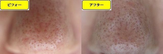 毛穴の開きとニキビ跡の治療であるケミカルピーリング治療前の鼻の写真と第5回目治療1週間後の鼻の写真
