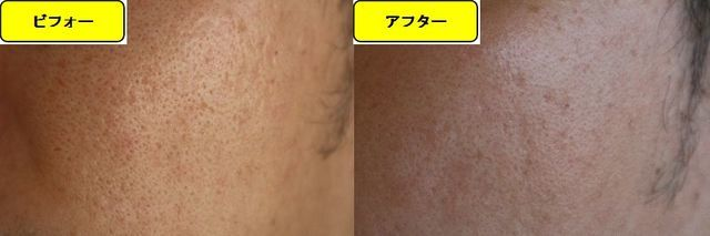 毛穴の開きとニキビ跡の治療であるケミカルピーリング治療前の顔の右側の写真と第5回目治療1か月後の顔の右側の写真