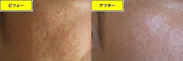 毛穴の開きとニキビ跡の治療であるケミカルピーリング治療前の顔の左側の写真と第5回目治療1か月後の顔の左側の写真