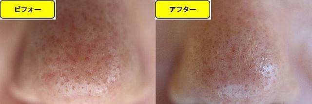 毛穴の開きとニキビ跡の治療であるケミカルピーリング治療前の鼻の写真と第5回目治療1か月後の鼻の写真