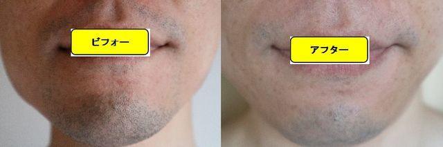 ヒゲ脱毛施術前の顔の正面側の写真とゴリラクリニックでヒゲ脱毛した第12回目照射1日後の顔の正面側の写真の比較画像