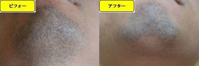 ヒゲ脱毛施術前の顎下の写真とゴリラクリニックでヒゲ脱毛した第12回目照射1日後の顎下の写真の比較画像
