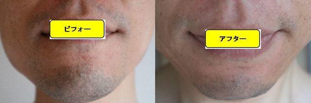 ヒゲ脱毛施術前の顔の正面側の写真とゴリラクリニックでヒゲ脱毛した第12回目照射1週間後の顔の正面側の写真の比較画像