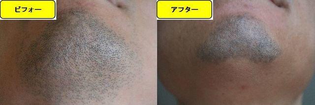 ヒゲ脱毛施術前の顎下の写真とゴリラクリニックでヒゲ脱毛した第12回目照射1週間後の顎下の写真の比較画像