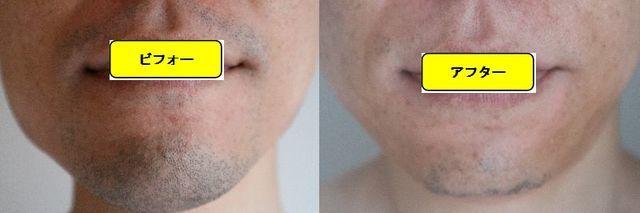 ヒゲ脱毛施術前の顔の正面側の写真とゴリラクリニックでヒゲ脱毛した第12回目照射1ヵ月後の顔の正面側の写真の比較画像