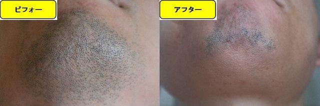 ヒゲ脱毛施術前の顎下の写真とゴリラクリニックでヒゲ脱毛した第12回目照射1ヵ月後の顎下の写真の比較画像