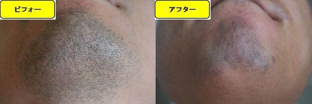 ヒゲ脱毛施術前の顎下の写真とゴリラクリニックでヒゲ脱毛した第13回目照射1日後の顎下の写真の比較画像