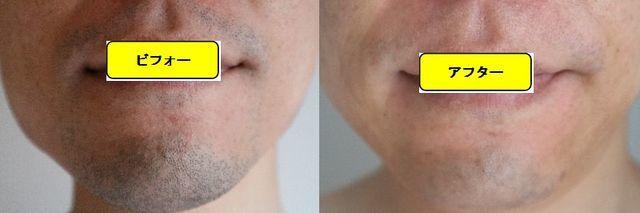 ヒゲ脱毛施術前の顔の正面側の写真とゴリラクリニックでヒゲ脱毛した第13回目照射1日後の顔の正面側の写真の比較画像