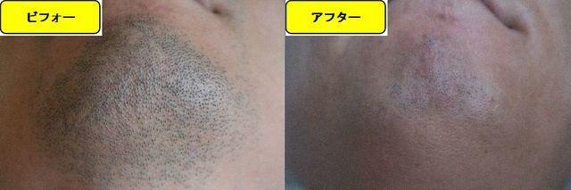 ヒゲ脱毛施術前の顎下の写真とゴリラクリニックでヒゲ脱毛した第13回目照射1ヵ月後の顎下の写真の比較画像