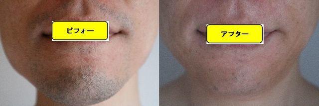 ヒゲ脱毛施術前の顔の正面側の写真とゴリラクリニックでヒゲ脱毛した第13回目照射1ヵ月後の顔の正面側の写真の比較画像