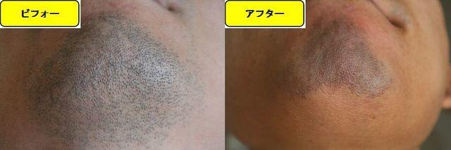 ヒゲ脱毛施術前の顎下の写真とゴリラクリニックでヒゲ脱毛した第14回目照射1日後の顎下の写真の比較画像