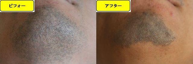 ヒゲ脱毛施術前の顎下の写真とゴリラクリニックでヒゲ脱毛した第14回目照射1週間後の顎下の写真の比較画像
