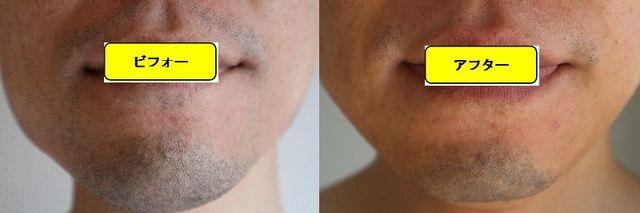 ヒゲ脱毛施術前の顔の正面側の写真とゴリラクリニックでヒゲ脱毛した第14回目照射1週間後の顔の正面側の写真の比較画像