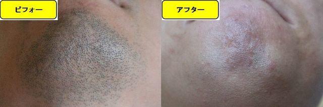 ヒゲ脱毛施術前の顎下の写真とゴリラクリニックでヒゲ脱毛した第14回目照射1ヵ月後の顎下の写真の比較画像