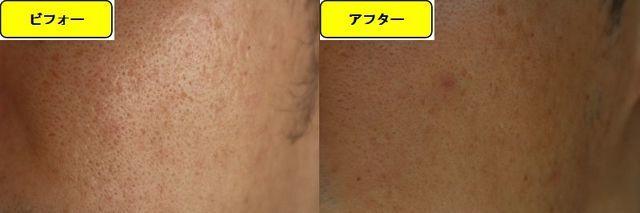 毛穴の開きとニキビ跡の治療であるケミカルピーリング治療前の顔の右側の写真と第2回目治療1日後の顔の右側の写真
