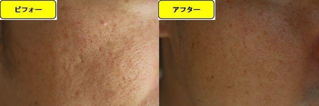 毛穴の開きとニキビ跡の治療であるケミカルピーリング治療前の顔の左側の写真と第2回目治療1日後の顔の左側の写真