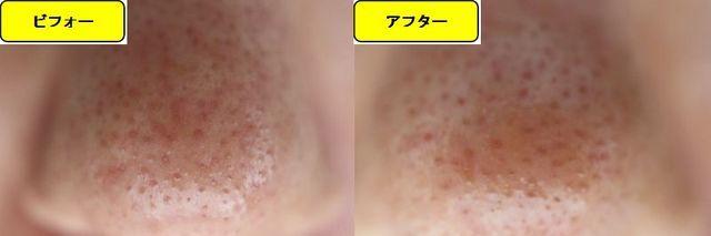 毛穴の開きとニキビ跡の治療であるケミカルピーリング治療前の鼻の写真と第2回目治療1日後の鼻の写真