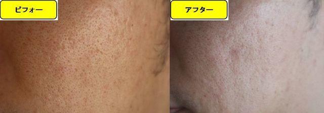 毛穴の開きとニキビ跡の治療であるケミカルピーリング治療前の顔の右側の写真と第2回目治療1週間後の顔の右側の写真