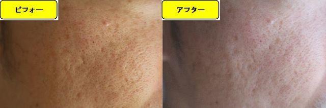 毛穴の開きとニキビ跡の治療であるケミカルピーリング治療前の顔の左側の写真と第2回目治療1週間後の顔の左側の写真