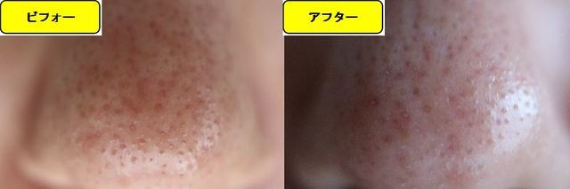 毛穴の開きとニキビ跡の治療であるケミカルピーリング治療前の鼻の写真と第2回目治療1週間後の鼻の写真
